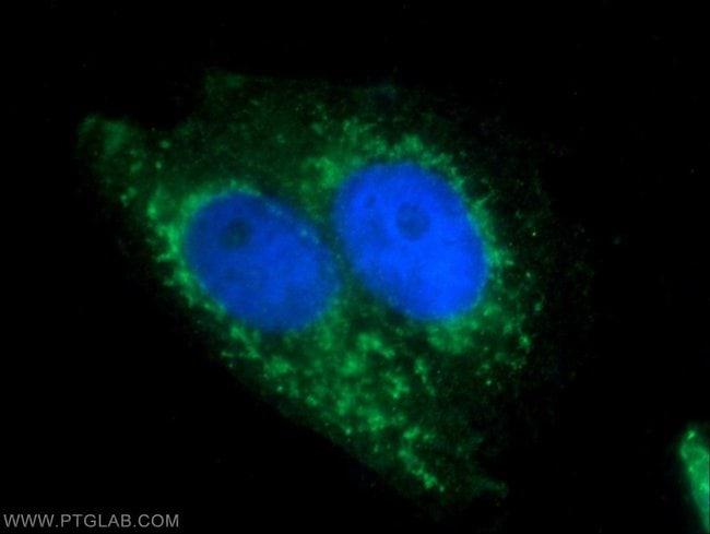 BAAT Rabbit anti-Human, Polyclonal, Proteintech 20 μL; Unconjugated Ver productos