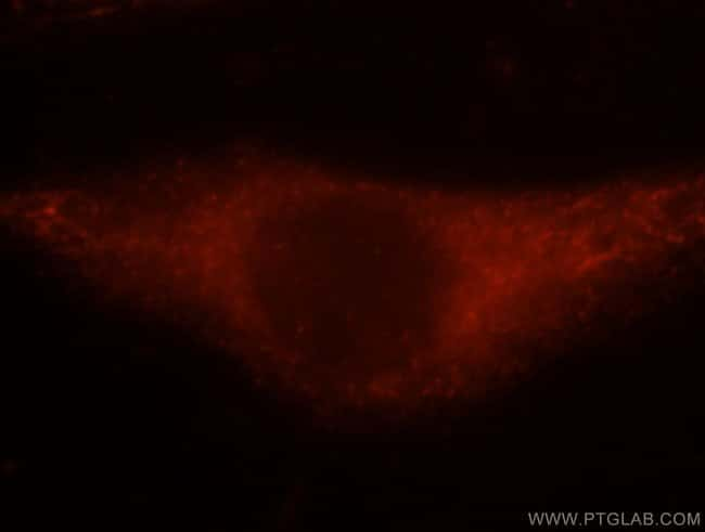 NBR1 Rabbit anti-Human, Mouse, Non-human primate, Rat, Polyclonal, Proteintech 20 μL; Unconjugated Ver productos