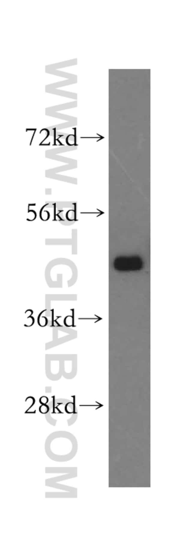 TXNDC4 Rabbit anti-Human, Polyclonal, Proteintech 150 μL; Unconjugated voir les résultats