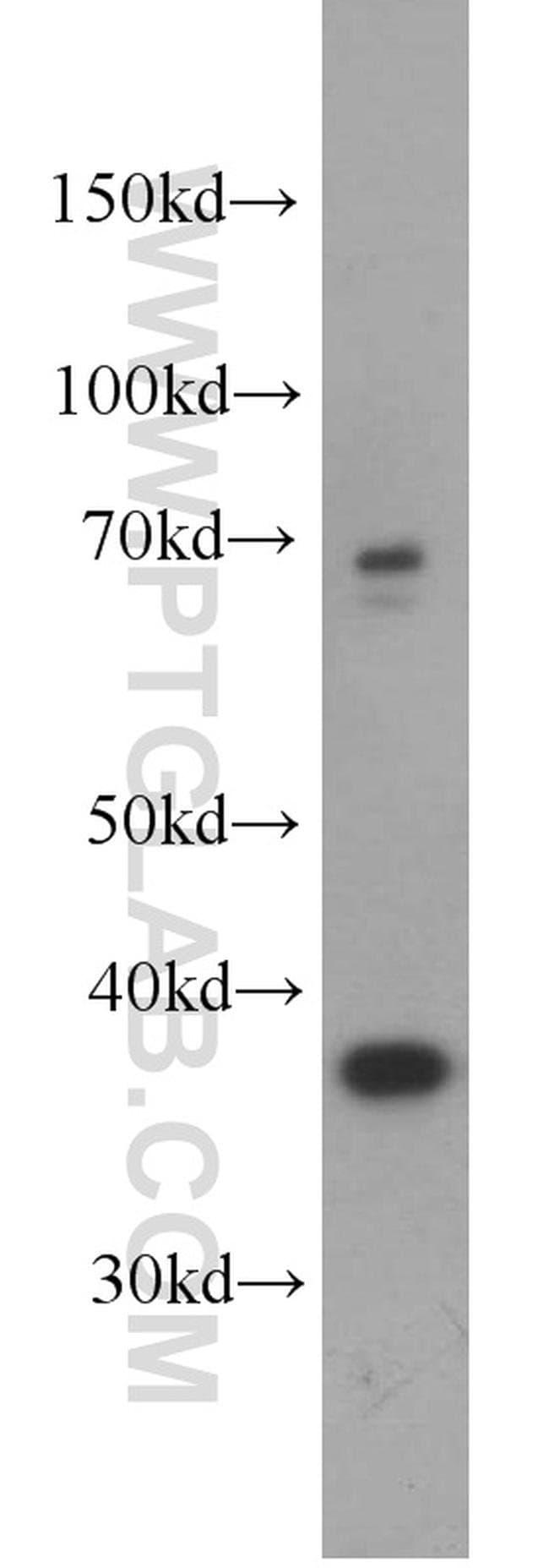 GALM Rabbit anti-Human, Mouse, Rat, Polyclonal, Proteintech 20 μL; Unconjugated Ver productos