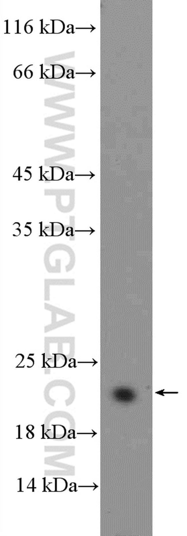 BCL2L2 Rabbit anti-Human, Mouse, Rat, Polyclonal, Proteintech 150 μL; Unconjugated Produkte