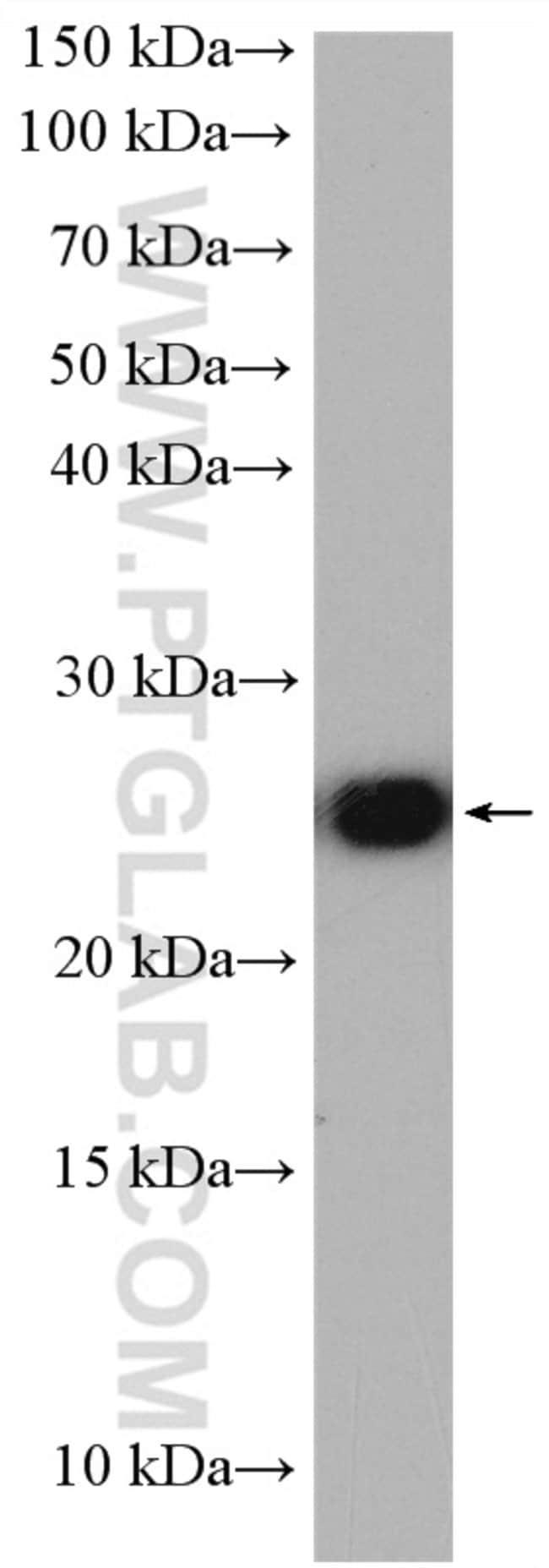 LYPLA1 Rabbit anti-Human, Mouse, Rat, Polyclonal, Proteintech 20 μL; Unconjugated Ver productos