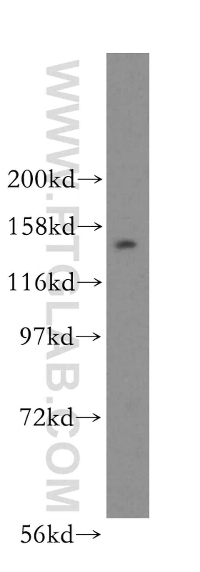 NUP160 Rabbit anti-Human, Mouse, Rat, Polyclonal, Proteintech 150 μL; Unconjugated Produkte
