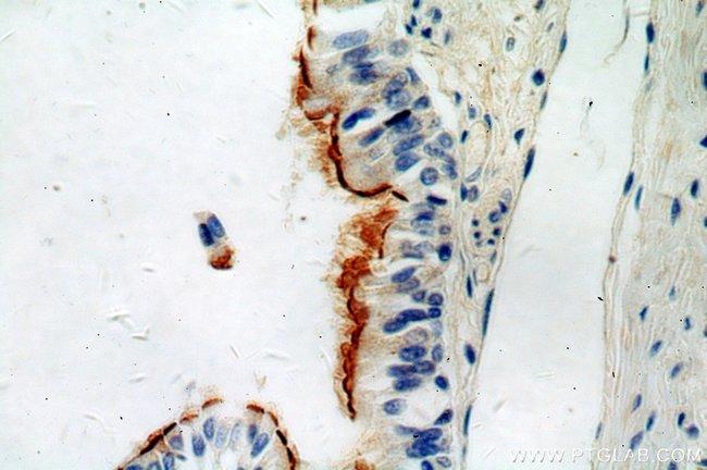 TCTN3 Rabbit anti-Human, Mouse, Polyclonal, Proteintech 20 μL; Unconjugated Ver productos