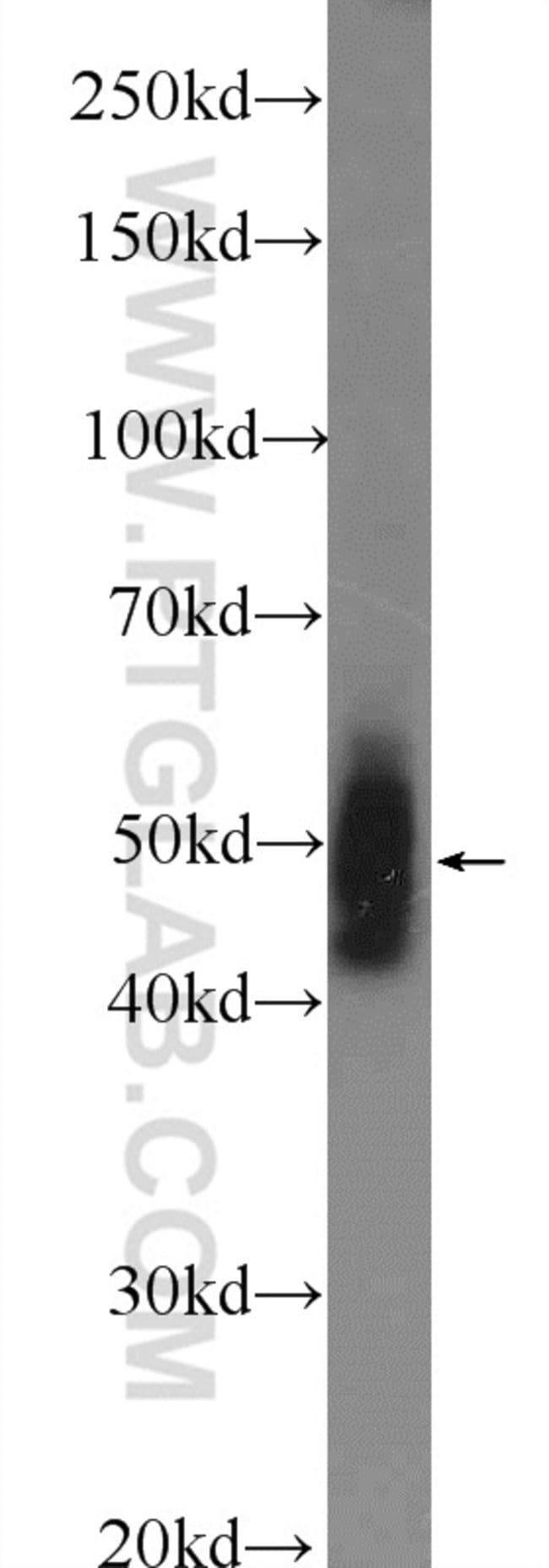 PELI2 Rabbit anti-Human, Mouse, Rat, Polyclonal, Proteintech 150 μL; Unconjugated Produkte