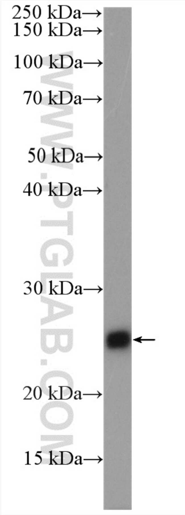 TNNI1 Rabbit anti-Human, Mouse, Rat, Polyclonal, Proteintech 150 μL; Unconjugated Produkte