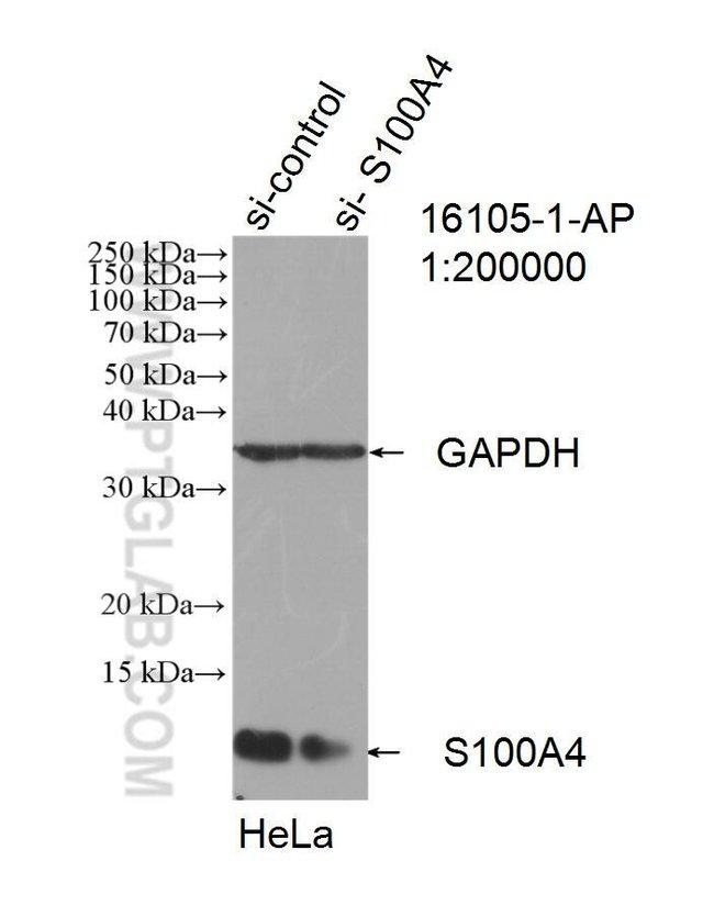 S100A4 Rabbit anti-Human, Mouse, Polyclonal, Proteintech 150 μL; Unconjugated voir les résultats