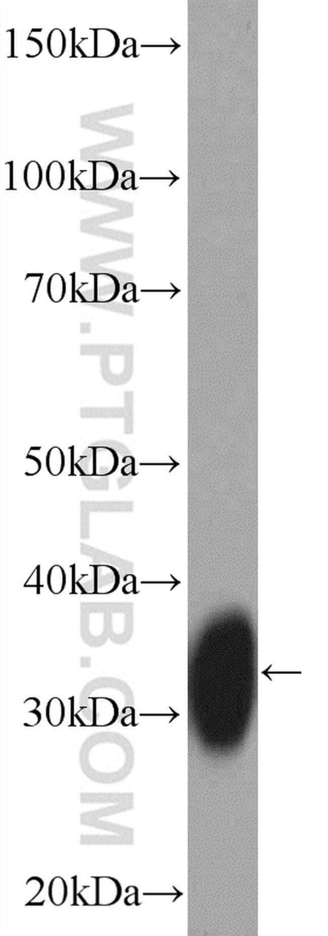 HLA-DPA1 Rabbit anti-Human, Polyclonal, Proteintech 150 μL; Unconjugated Produkte