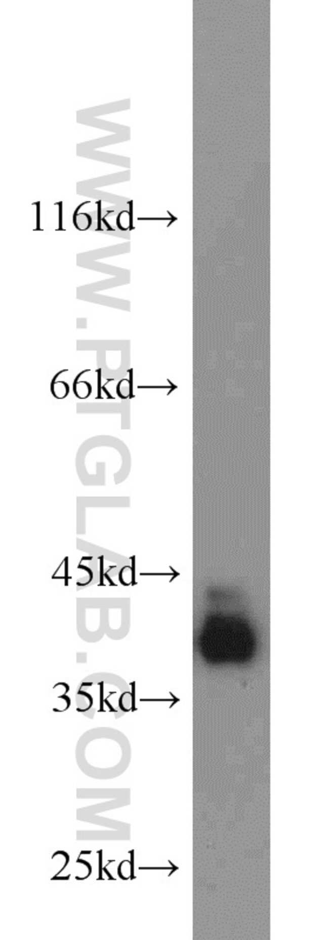 PBK Rabbit anti-Human, Mouse, Rat, Polyclonal, Proteintech 20 μL; Unconjugated Ver productos