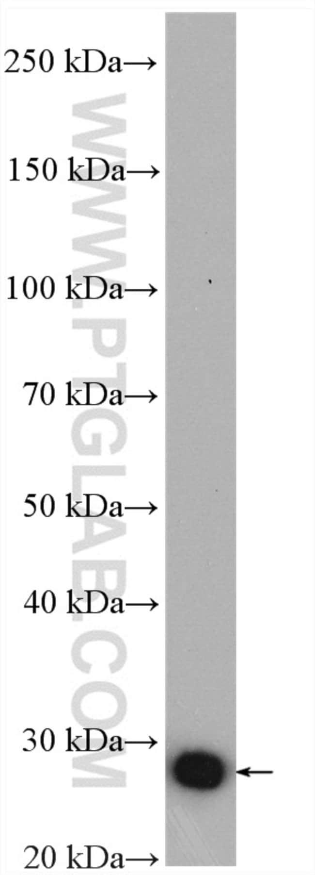 ARHGDIB Rabbit anti-Human, Mouse, Rat, Polyclonal, Proteintech 20 μL; Unconjugated Ver productos