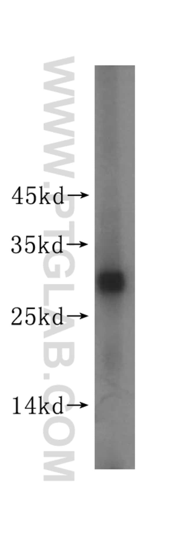 PGAM1 Rabbit anti-Human, Mouse, Rat, Polyclonal, Proteintech 150 μL; Unconjugated Produkte