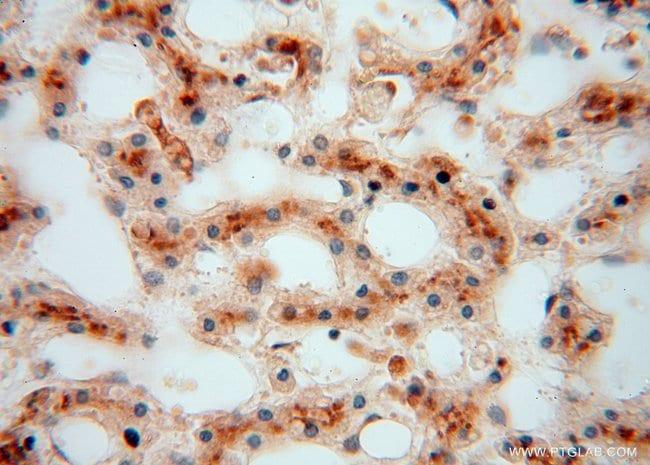 ATP6V1G1 Rabbit anti-Human, Mouse, Rat, Polyclonal, Proteintech 150 μL; Unconjugated Produkte