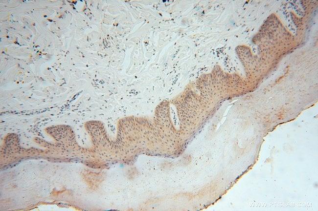 SMYD1 Rabbit anti-Human, Mouse, Polyclonal, Proteintech 150 μL; Unconjugated Produkte