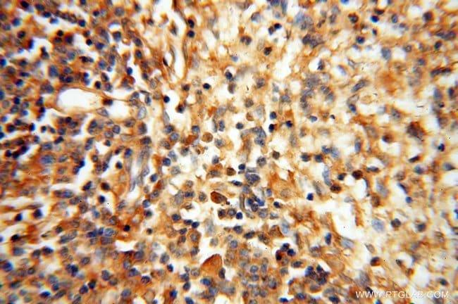 Lin28A Rabbit anti-Human, Mouse, Rat, Polyclonal, Proteintech 20 μL; Unconjugated Ver productos