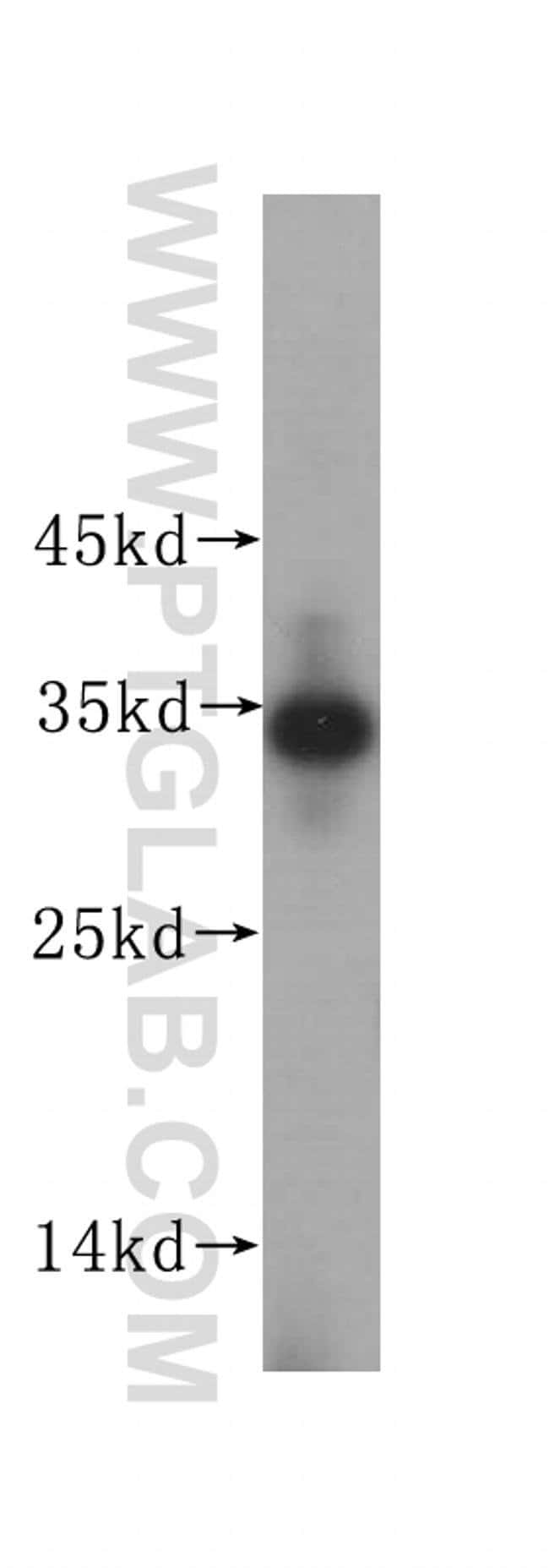 IMP4 Rabbit anti-Human, Mouse, Rat, Polyclonal, Proteintech 150 μL; Unconjugated Produkte