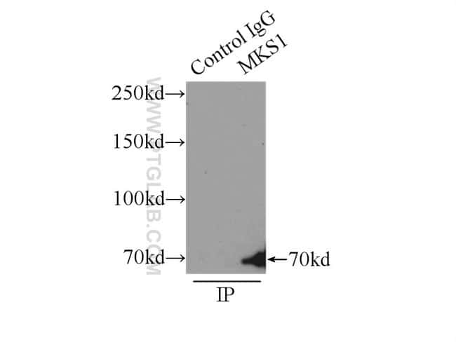 MKS1 Rabbit anti-Human, Mouse, Rat, Polyclonal, Proteintech 150 μL; Unconjugated voir les résultats
