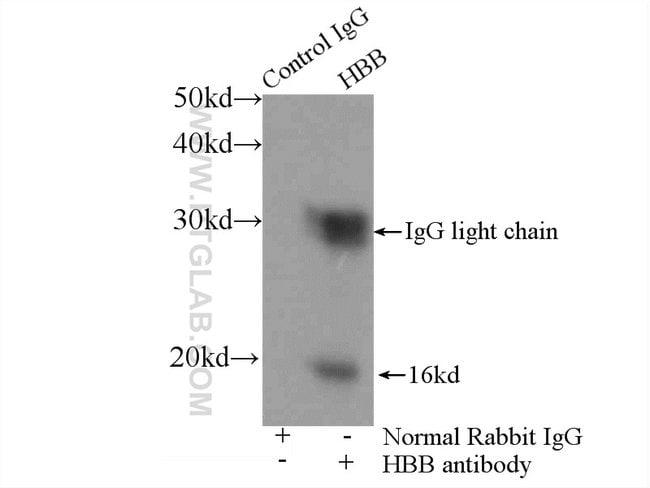 HBB Rabbit anti-Human, Mouse, Polyclonal, Proteintech 150 μL; Unconjugated Produkte