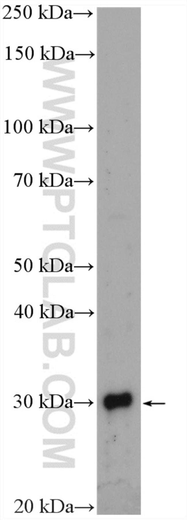 TINP1 Rabbit anti-Human, Mouse, Rat, Polyclonal, Proteintech 150 μL; Unconjugated voir les résultats