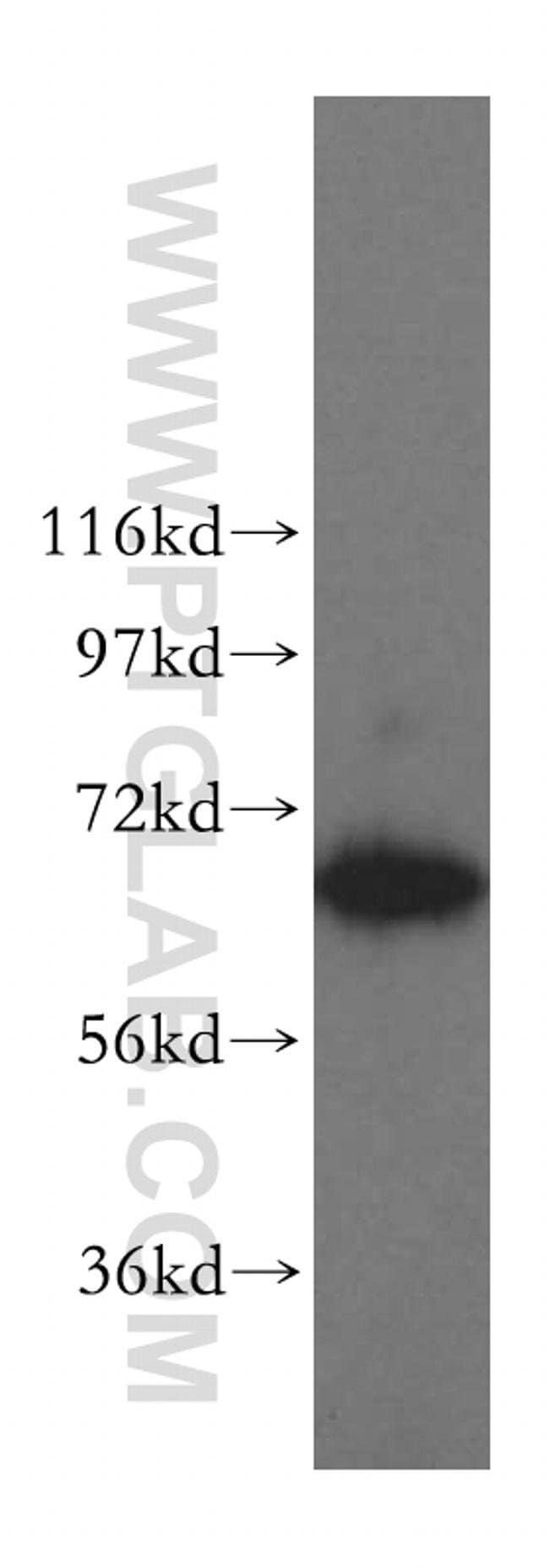 TBRG4 Rabbit anti-Human, Mouse, Rat, Polyclonal, Proteintech 150 μL; Unconjugated Produkte
