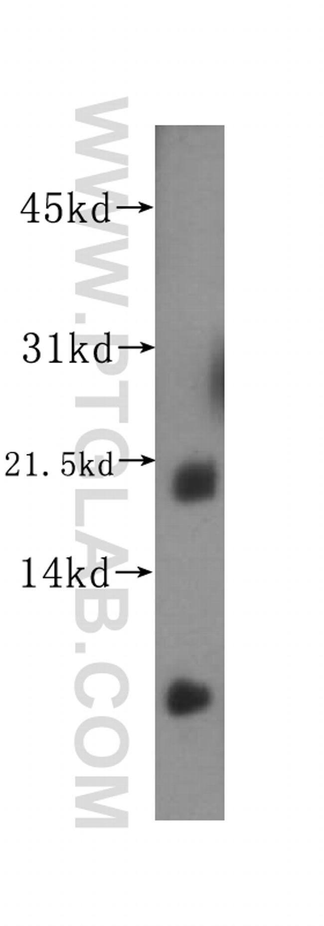 SAT2 Rabbit anti-Human, Mouse, Rat, Polyclonal, Proteintech 20 μL; Unconjugated Ver productos