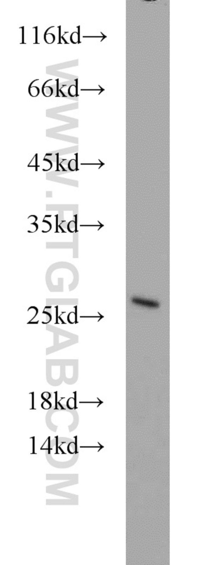 GADD45GIP1 Rabbit anti-Human, Mouse, Rat, Polyclonal, Proteintech 20 μL; Unconjugated Ver productos