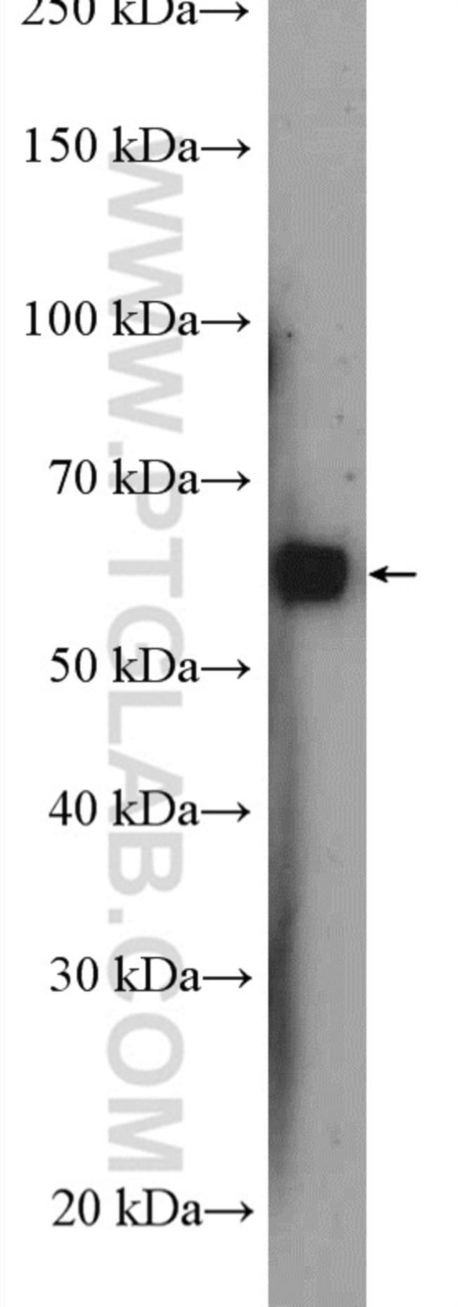 G3BP2 Rabbit anti-Human, Polyclonal, Proteintech 20 μL; Unconjugated Ver productos