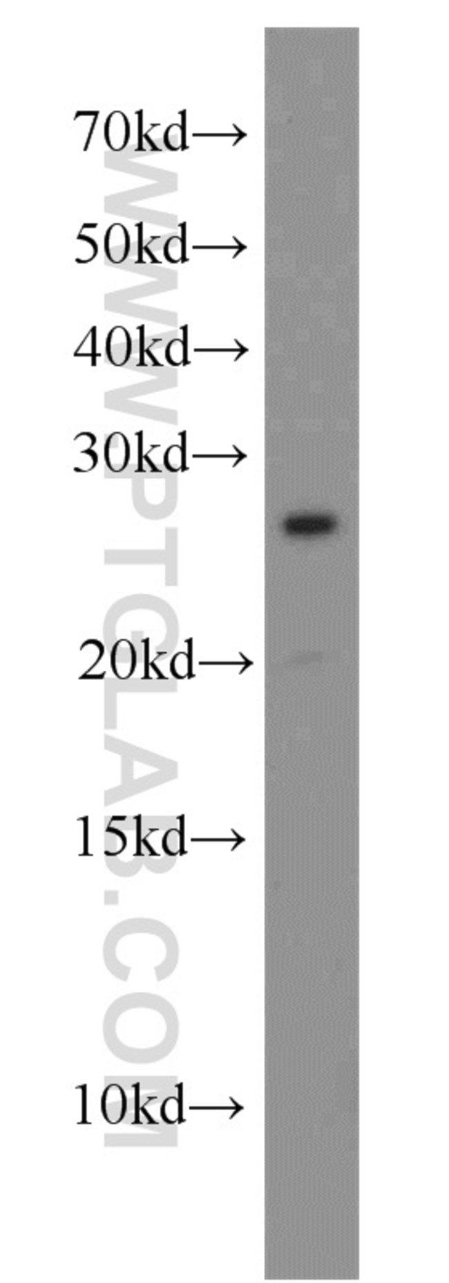 CEP70 Rabbit anti-Human, Mouse, Rat, Polyclonal, Proteintech 150 μL; Unconjugated Produkte