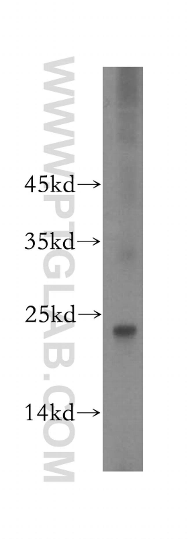 GNPNAT1 Rabbit anti-Human, Mouse, Rat, Polyclonal, Proteintech 150 μL; Unconjugated voir les résultats