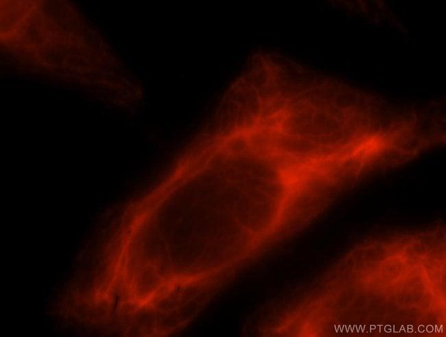 LENG9 Rabbit anti-Human, Polyclonal, Proteintech 20 μL; Unconjugated voir les résultats