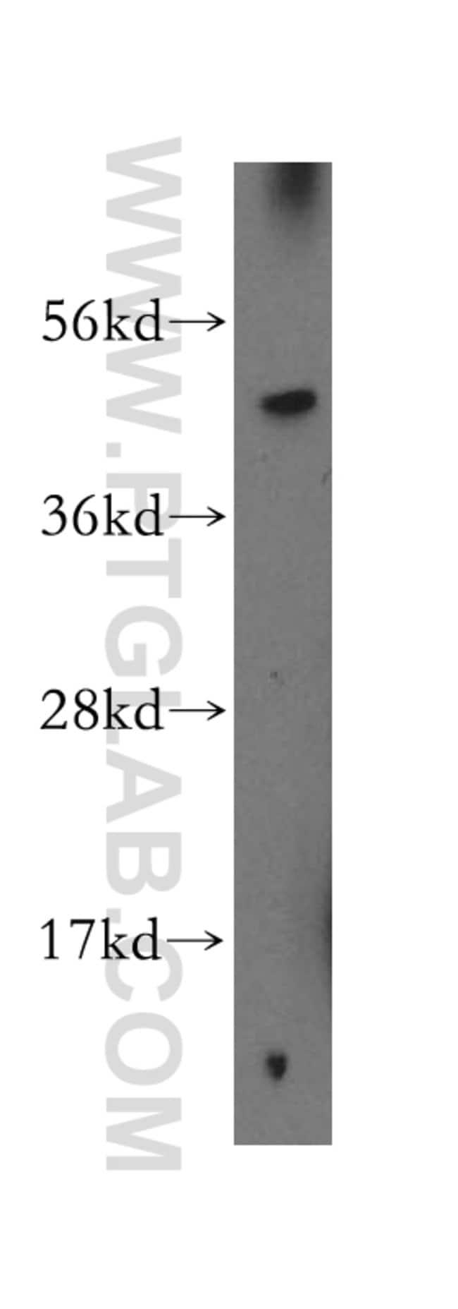 BTD Rabbit anti-Human, Mouse, Rat, Polyclonal, Proteintech 150 μL; Unconjugated Ver productos