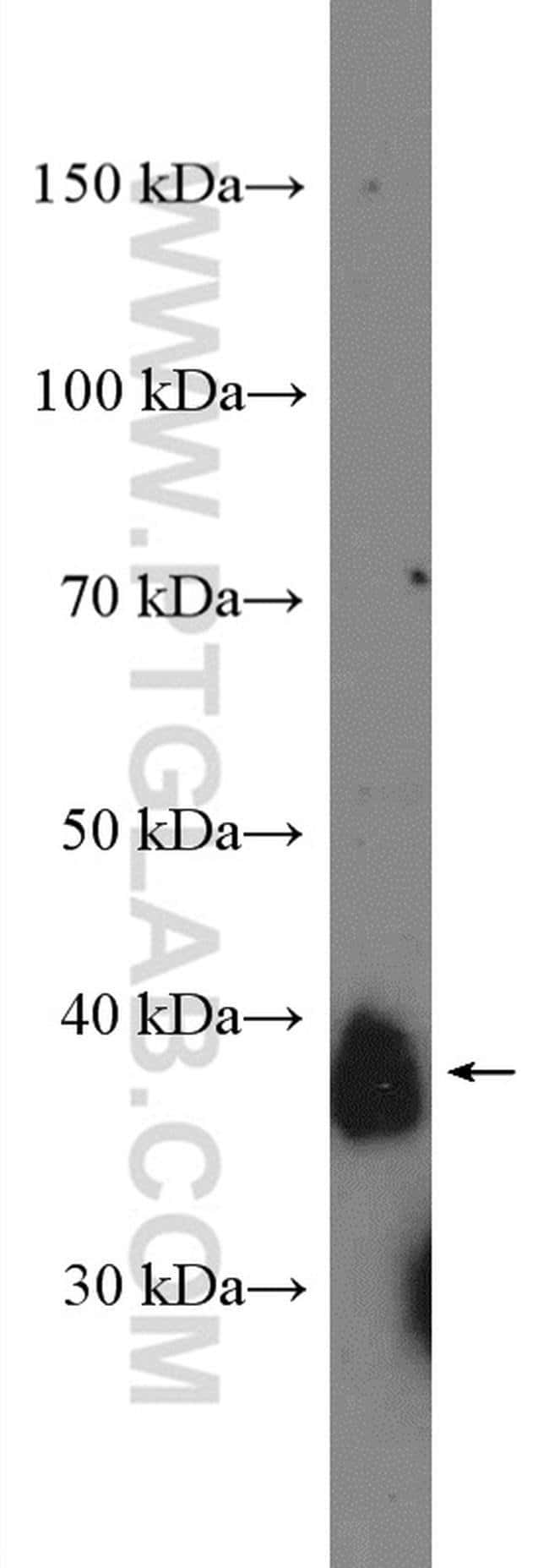 CD157 Rabbit anti-Human, Mouse, Rat, Polyclonal, Proteintech 20 μL; Unconjugated Produkte