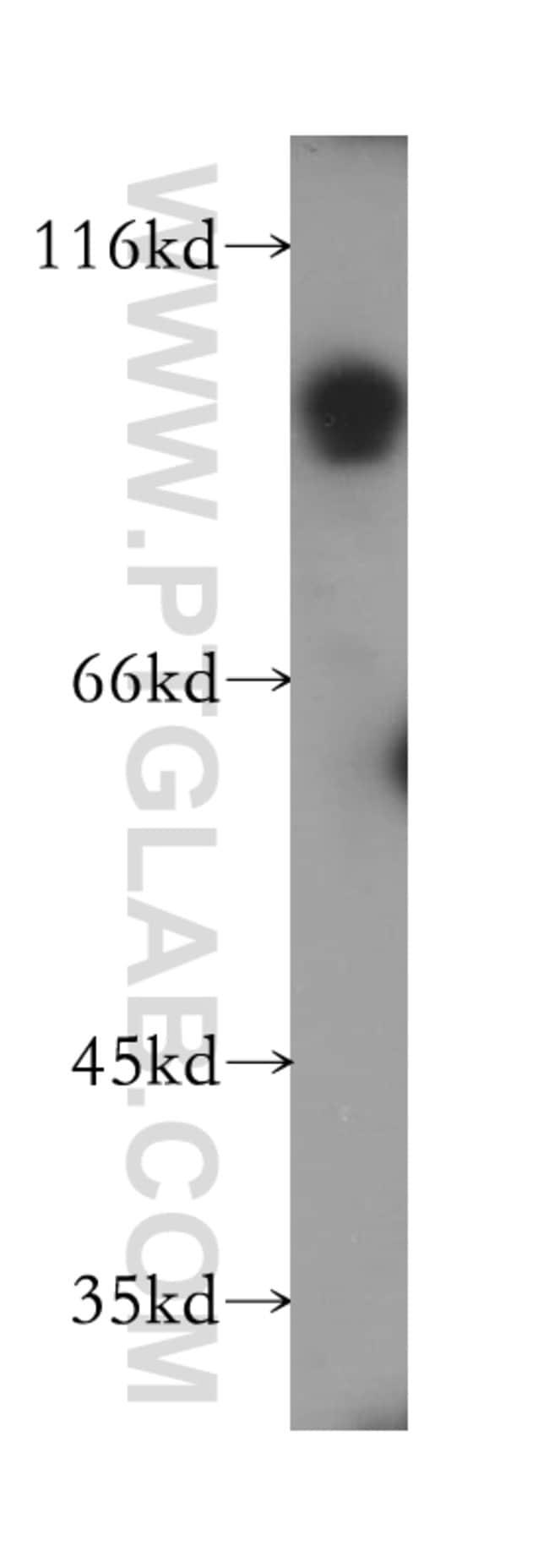 SLC3A1 Rabbit anti-Human, Mouse, Rat, Polyclonal, Proteintech 20 μL; Unconjugated Produkte