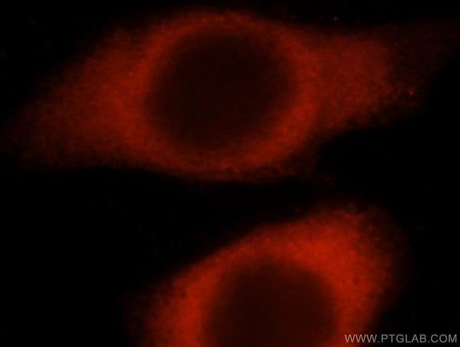 HARS Rabbit anti-Human, Mouse, Rat, Polyclonal, Proteintech 20 μL; Unconjugated Produkte