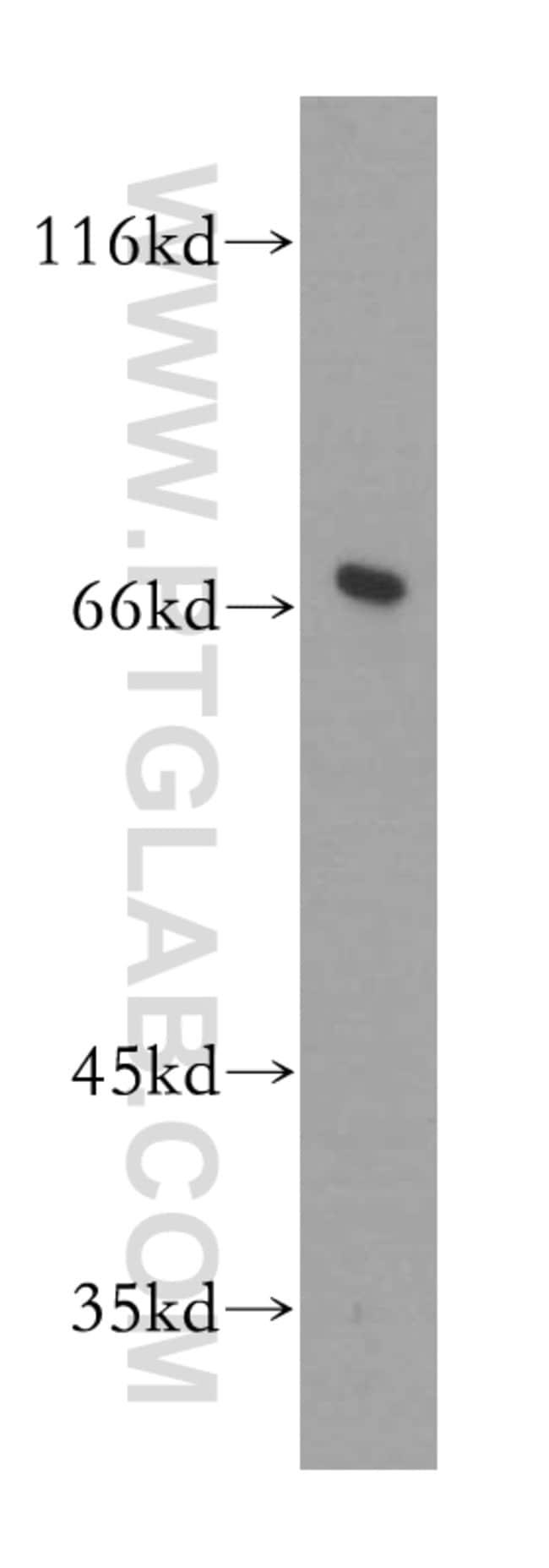 GMPS Rabbit anti-Human, Mouse, Rat, Polyclonal, Proteintech 20 μL; Unconjugated voir les résultats