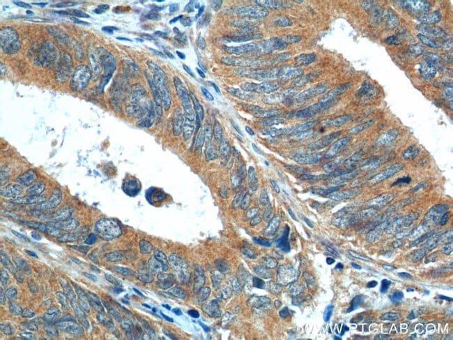 NRF2/NFE2L2 Rabbit anti-Human, Mouse, Rat, Polyclonal, Proteintech 20 μL; Unconjugated voir les résultats