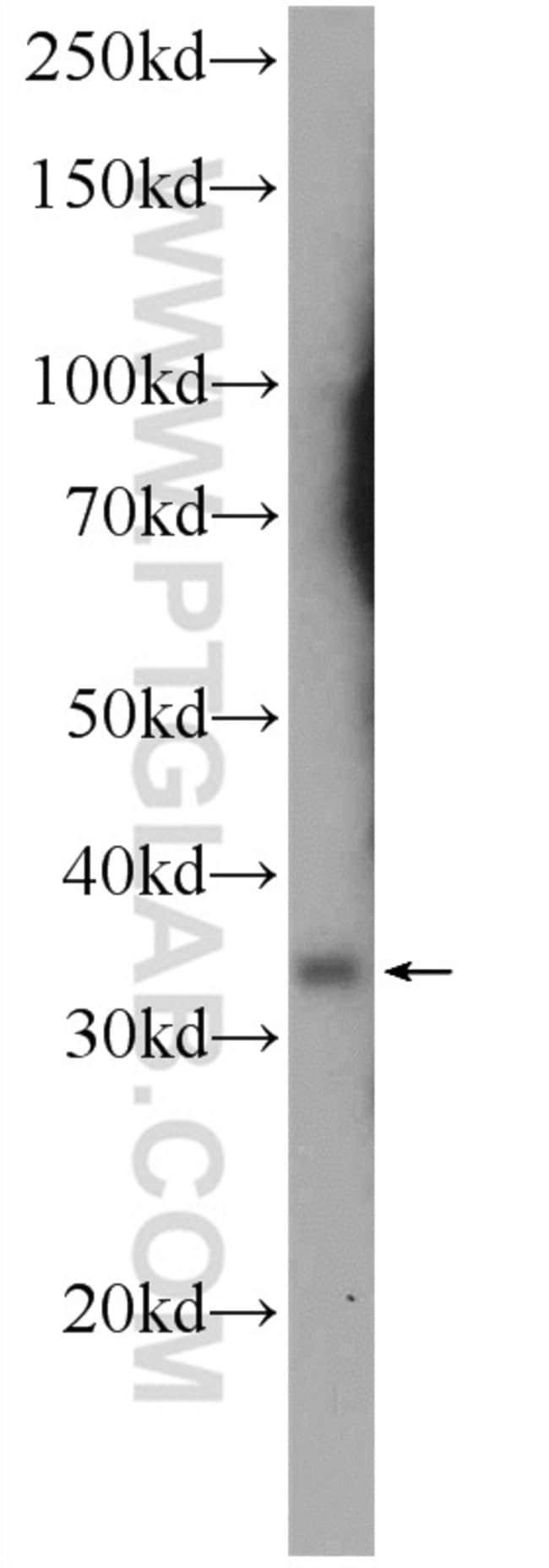 BCAT2 Rabbit anti-Human, Mouse, Rat, Polyclonal, Proteintech 150 μL; Unconjugated Ver productos