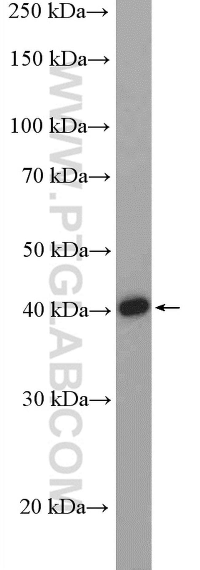 PNMA2 Rabbit anti-Human, Mouse, Rat, Polyclonal, Proteintech 20 μL; Unconjugated Produkte