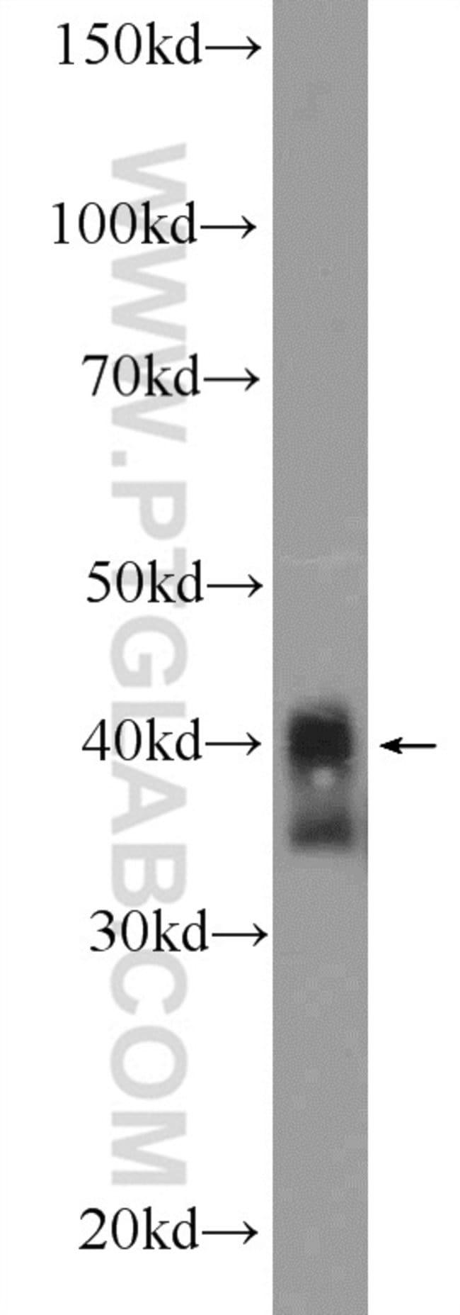XPA Rabbit anti-Human, Mouse, Rat, Polyclonal, Proteintech 150 μL; Unconjugated Ver productos