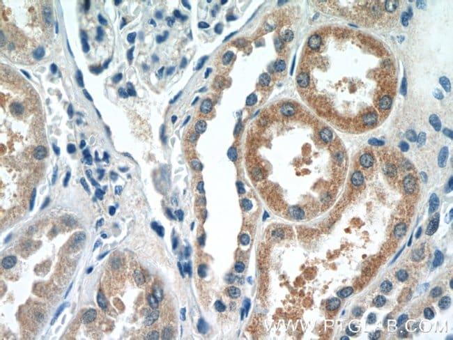 DPEP2 Rabbit anti-Human, Mouse, Rat, Polyclonal, Proteintech 20 μL; Unconjugated Produkte