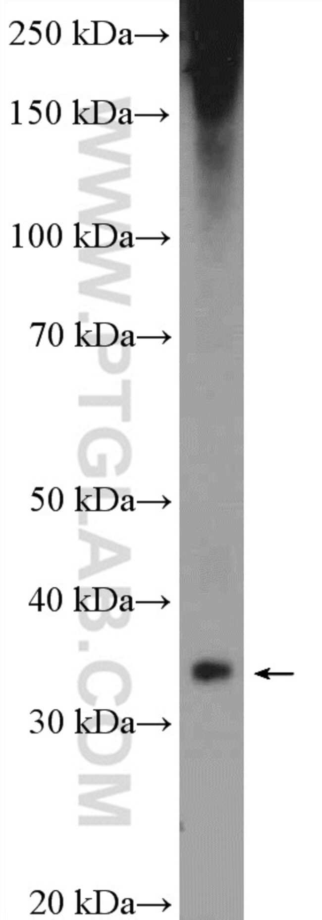 Aquaporin 4 Rabbit anti-Human, Mouse, Rat, Polyclonal, Proteintech 20 μL; Unconjugated Produkte