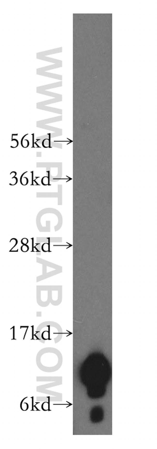 NDUFA4L2 Rabbit anti-Human, Mouse, Rat, Polyclonal, Proteintech 150 μL; Unconjugated Produkte