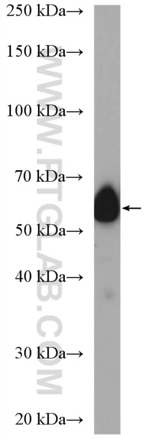 CDC25C Rabbit anti-Human, Polyclonal, Proteintech 150 μL; Unconjugated Produkte