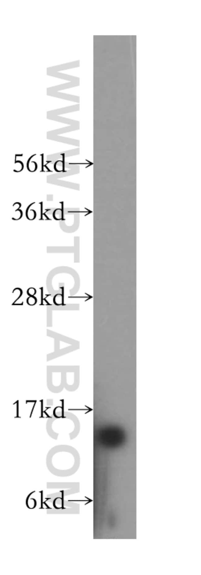RPS12 Rabbit anti-Human, Mouse, Rat, Polyclonal, Proteintech 150 μL; Unconjugated Produkte