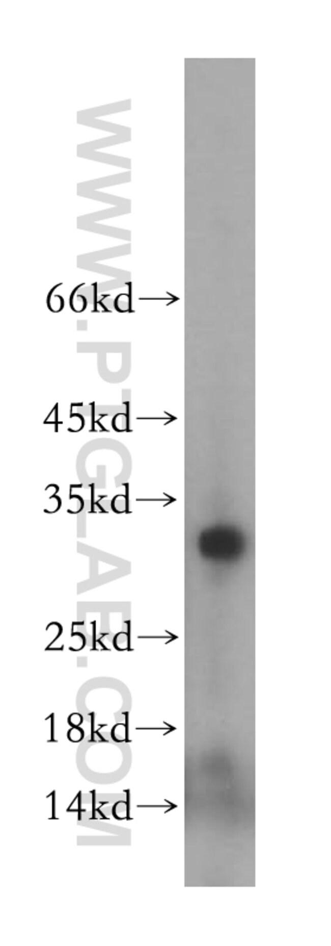 MRPL2 Rabbit anti-Human, Mouse, Rat, Polyclonal, Proteintech 20 μL; Unconjugated Ver productos