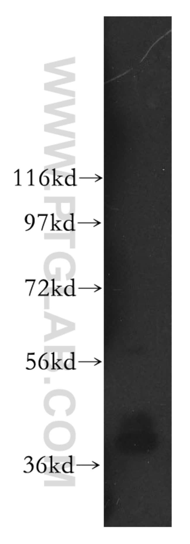 ARH3 Rabbit anti-Human, Mouse, Rat, Polyclonal, Proteintech 150 μL; Unconjugated voir les résultats
