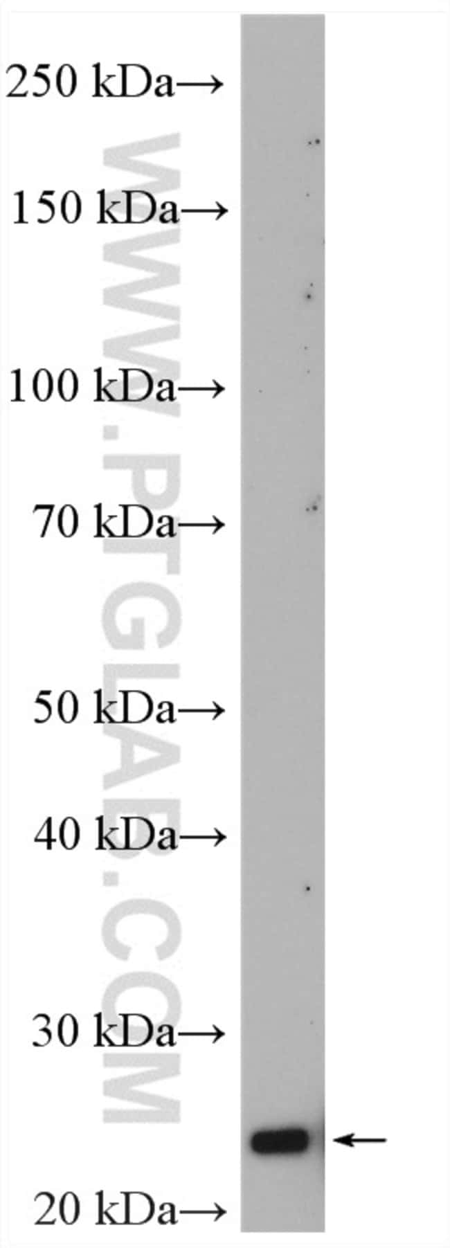 DUSP22 Rabbit anti-Human, Mouse, Polyclonal, Proteintech 150 μL; Unconjugated Produkte