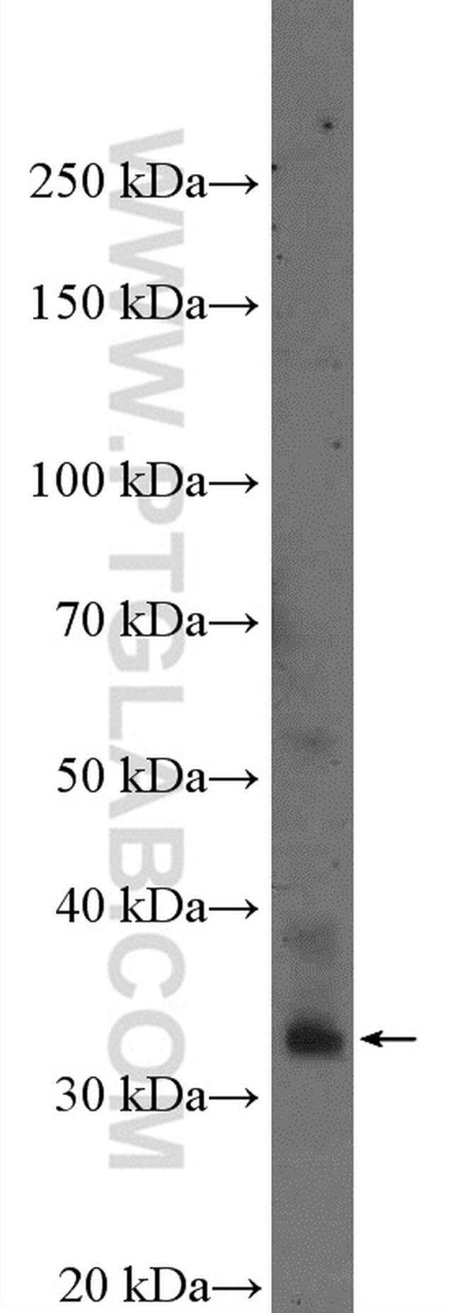 PMEPA1 Rabbit anti-Human, Mouse, Rat, Polyclonal, Proteintech 150 μL; Unconjugated Produkte