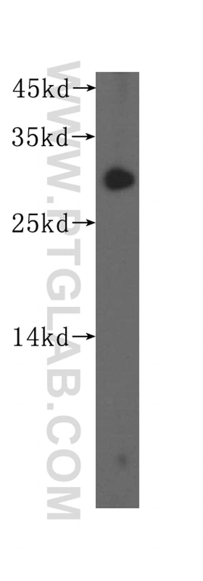 SURF2 Rabbit anti-Human, Mouse, Rat, Polyclonal, Proteintech 150 μL; Unconjugated voir les résultats