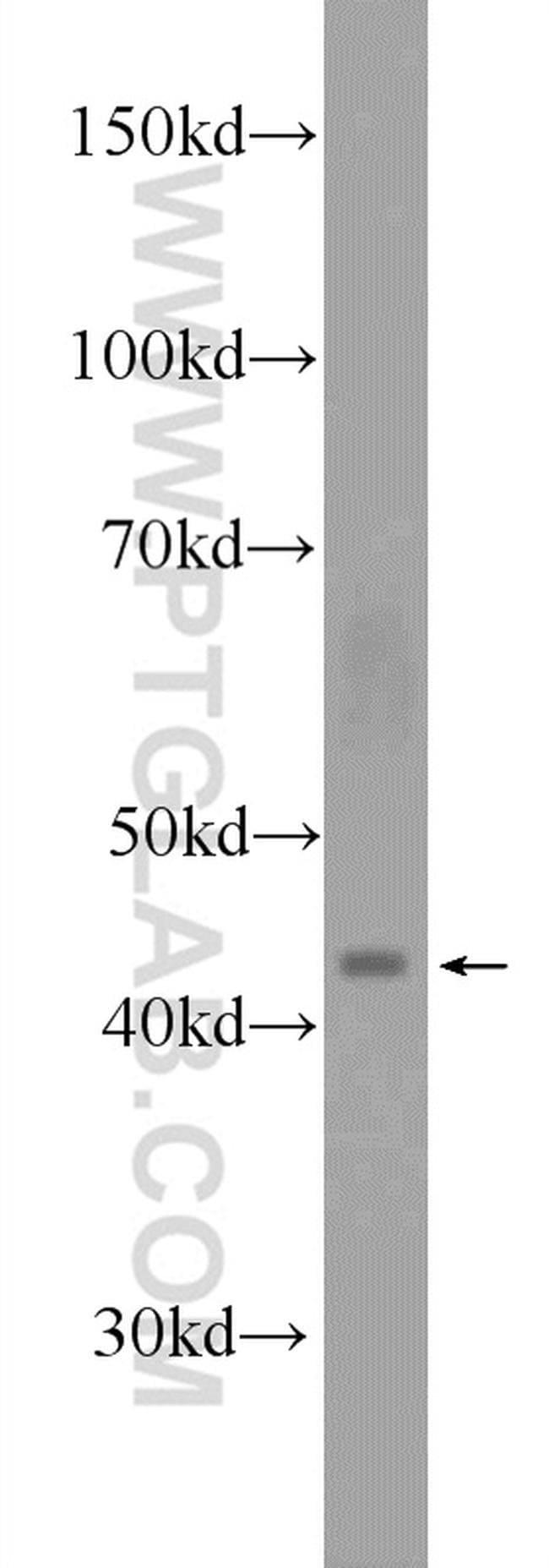 SMPDL3B Rabbit anti-Human, Mouse, Rat, Polyclonal, Proteintech 150 μL; Unconjugated voir les résultats