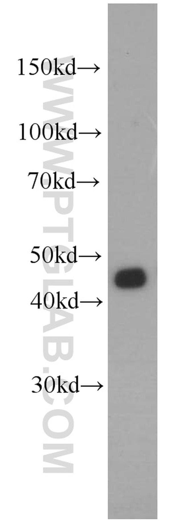 FUT6 Rabbit anti-Human, Polyclonal, Proteintech 20 μL; Unconjugated Ver productos